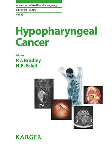 Hypopharyngeal Cancer (Advances in Oto-Rhino-Laryngology Book 83) (English Edition)