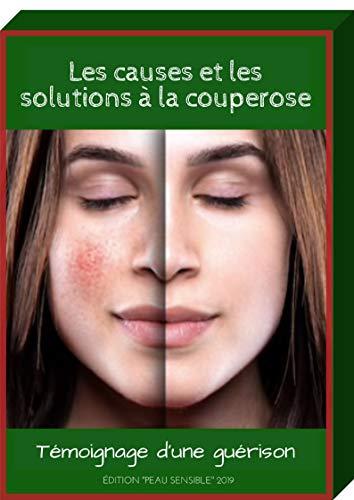 Comment je me suis débarrassé de la couperose (French Edition)
