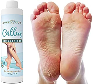 Callus Remover Eliminator Gel - Corn Remover Dead Skin Eliminator And Foot Exfoliator Professional Strength - Made In The USA - 4 oz