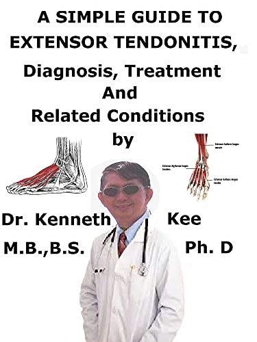 A Simple Guide To Extensor Tendonitis, Diagnosis, Treatment And Related Conditions (English Edition)