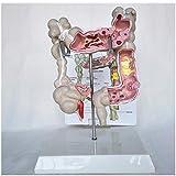 LBYLYH Modello educativo Modello di malattia del Colon-retto Umano - Modello anatomico del Modello del Corpo della lesione del Colon-retto - Colonursi Umani anatomici Medici