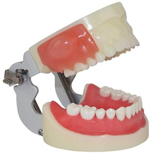 Dental Zähne Pathology Modell, Mund Alveolar Abszess Inzision Und Zahnvorbereitungsmodell, Geeignet Für Medizinische Lehre, Praxis Und Studium