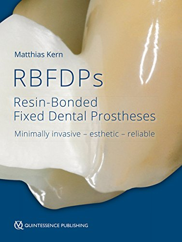Download RBFDPs: Resin-Bonded Fixed Dental Prostheses: Minimally Invasive - Esthetic - Reliable 1786980207