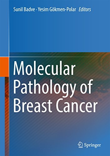 Molecular Pathology of Breast Cancer (English Edition) eBook ...