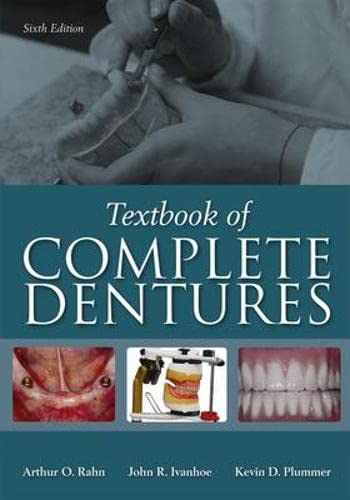 Uyzebook textbook of complete dentures 6th edition by arthur o easy you simply klick textbook of complete dentures 6th edition book download link on this page and you will be directed to the free registration form fandeluxe Gallery