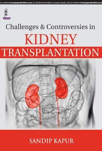 Challenges & Controversies In Kidney Transplantation