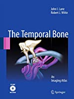 Temporal Bone: An Imaging Atlas