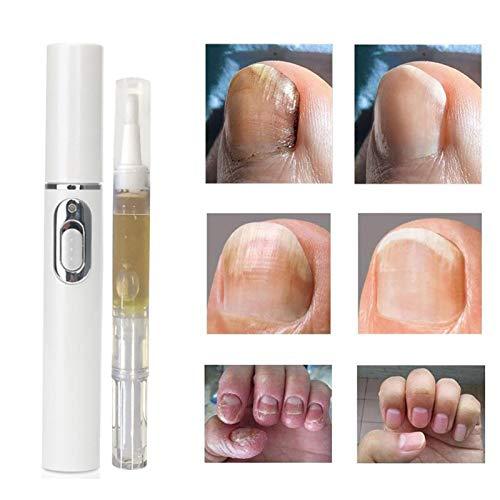 Nagelpflege Stift Nail Treatment, Nagel Behandlung Und Nagelreparatur Stift, Entfernen Ablagerungen, Reparatur Gebrochene Nägel Für Gesunde Fuß Und Hand