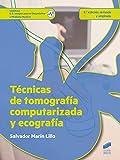 Técnicas de tomografía computarizada y ecografía (2.ª edición revisada y ampliada): 74 (Sanidad)