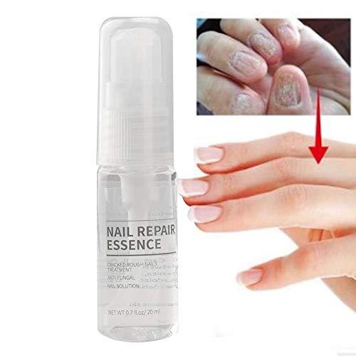 Spray liquide 20ml de soin des ongles de réparation d'ongle pourDiscoloration, ongles fissurés cassants, élimination sûre des odeurs Restaurez la solu