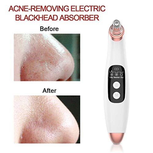 USB Vacuüm Zuig Comedondrukker Neus Facial Pore Cleaner Spot Acne Black Head Puistje Verwijdering Schoonheid Gezicht Huidverzorging Gereedschap