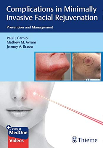 Complications in Minimally Invasive Facial Rejuvenation: Prevention and Management