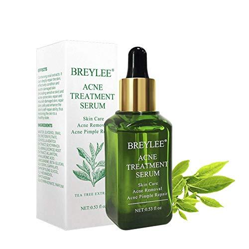 Sérum anti-acné pour le traitement de l'acné, élimine les boutons, les taches noires et les céréales, traitement anti-imperfections contre l'acné