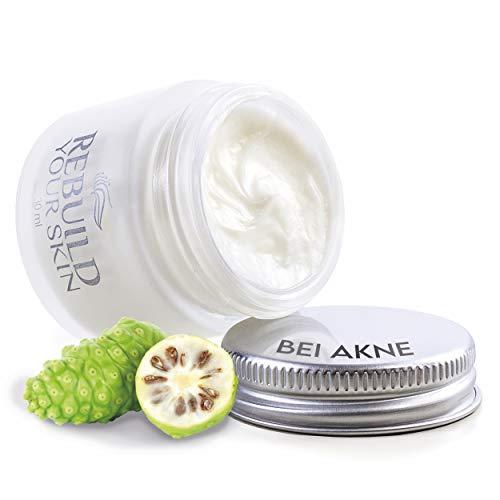 REBUILD YOUR SKIN Akne Creme 5ml - Creme gegen Juckreiz & Akne zu intensiver Hautpflege bei Neurodermitis & Schuppenflechte - Anti Akne Gesichtspflege
