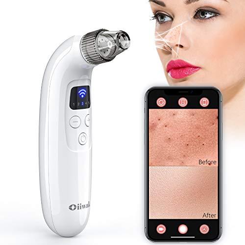 Oiiwak Pore Vacuum Blackhead Remover with Camera Pimple Popper Sucker Acne Removal Extractor WiFi Microscope Facial Pore Cleanser Skin Care Tool