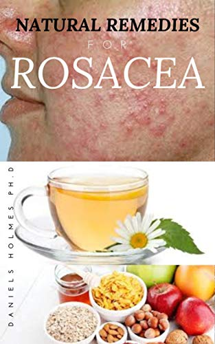 NATURAL REMEDIES FOR ROSACEA: Treating Rosacea with Natural Home Remedies Includes Nose Redness,Acne,Eczema and Lots More