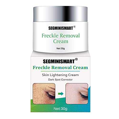 Skin Lightening Cream, Whitening Cream, Brightening Cream, Melasma Treatment Cream, Freckle Removal Cream For Face Brightening, Dark Spot, Skin Pigmentation, Age Spots For Face and Body