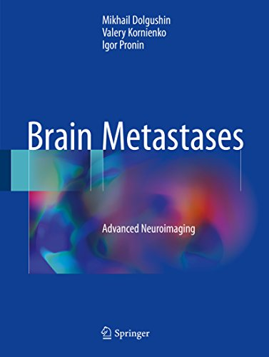 Brain Metastases: Advanced Neuroimaging (English Edition)