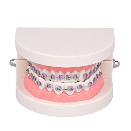 Anself Dental Kieferorthopädische Malokklusion Modell mit Brackets Archwire Bukkalrohr