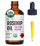 Rosehip Seed Oil by Kate Blanc. USDA Certified Organic, 100% Pure, Cold Pressed, Unrefined. Reduce Acne Scars. Essential Oil for Face, Nails, Hair, Skin. Therapeutic AAA+ Grade. (1 fl oz)