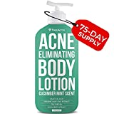 Acne Lotions - Best Reviews Guide
