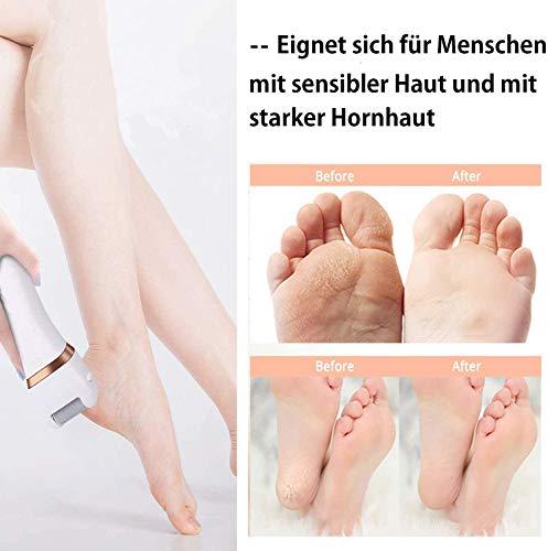 Elektrischer Hornhautentferner Hornhaut Entfernung Wolady Elektrische Fußfeile Fußpflege wasserdicht USB wiederaufladbar mit 5 Ersatzrollen (W-B)