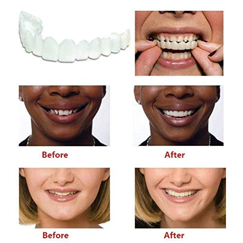 Soft Dentures Upper and Lower Teeth Dentures Comfortable Cover Instant Comfort Whitening Teeth Denture,3sets