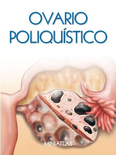 Síndrome de Ovario Poliquístico (SOP) - Miniatlas