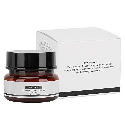 30g Crema para el Acné, Crema Facial para el Control del Aceite, Control para la Eliminación de Espinillas Crema Facial Hidratante Tratamiento para el Acné Espinillas la Crema Anti Acné