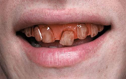 Horror-Shop Dents De Facette SFX Goblin Pourries