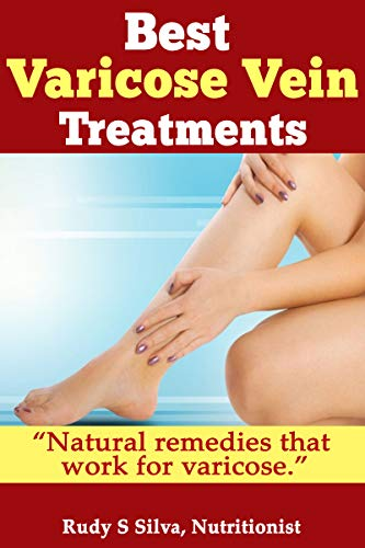 Best Varicose Vein Treatments?: Discover Little Know Natural Remedies For...