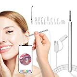 Slimerence USB Otoscope Ear Camera, 3.9mm Visual Ear Scope Cleaning Endoscope with Earwax Removal Tools, 6 LED Lights, Digital Ear Inspection Otoscope for Android, Windows & Mac(100,0000 Pixels)