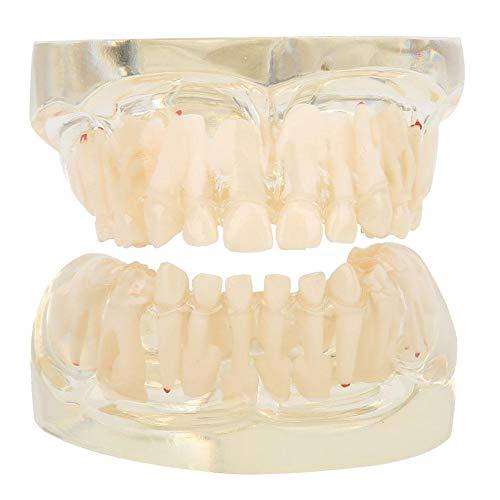 Zähne Modell, Demonstrationsmodell Zähne, Laubwechselmodell bleibenden Zähne für den Krankenhausunterricht Sturding, Modell für den pathologischen Zahnunterricht
