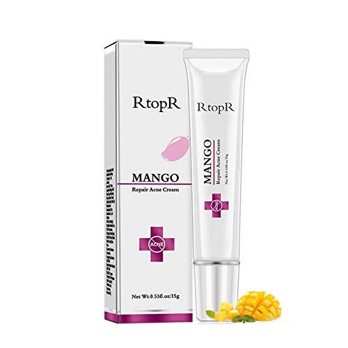 selfdepen Crema para Eliminar Cicatrices de acné, Crema para Eliminar acné, Crema para Tratamiento de acné, Productos para el Cuidado de la Piel Facial hidratante con Control de Aceite