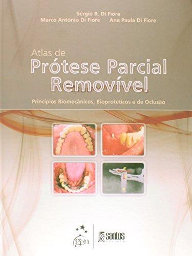 Atlas de Prótese Parcial Removível Princípios Biomecânicos e Bioprotéticos e de Oclusão