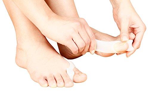 Sollievo dall'alluce valgo (Hallux valgus) e allineamento delle dita 2 in 1 - Paio per i piedi destro e sinistro - Agevola il riallineamento dell'alluce in una posizione più naturale e offre sollievo contro lo sfregamento. Indossabile con calze e scarpe. Indossabile di giorno o di notte.