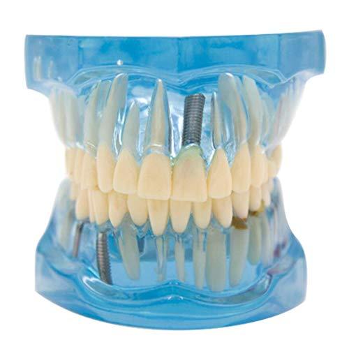 FSFF Modelo de Diente Modelo de enseñanza de Estudio de Dientes Modelo de Dientes de demostración de prótesis removible Dental Transparente Azul para enseñanza de Estudio