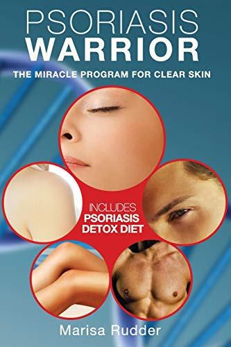 Psoriasis Warrior: The Miracle Program for Clear skin