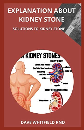 EXPLANATION ABOUT KIDNEY STONE: SOLUTIONS TO KIDNEY STONE