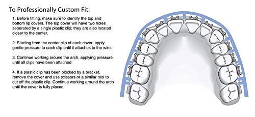 [SmileWorld] Lip Guard for Braces Bundle Set 4 Items, Clip on System, 2 Cases Braces Wax,01 Retainer Case, Oral Relief for Orthodontic Braces, Mouthguard and Dental Wax, Comfort Lip Shield