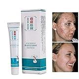 Crema para eliminar cicatrices de acné, crema suave para pecas, gel de reparación de granos, eficaz y bacteriostático, elimina granos, control de aceite, cuidado de la piel, producto Yiitay