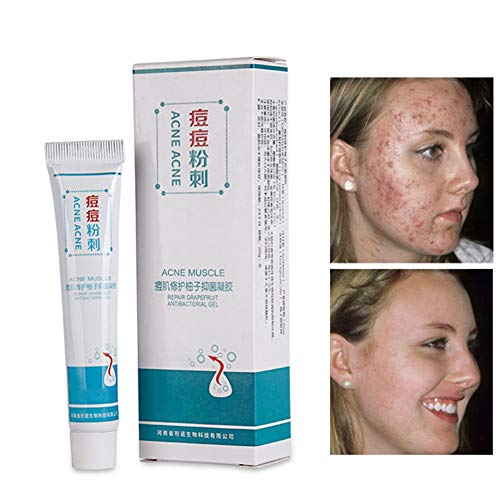 Acne Scar Removal Cream, Soft Cream Freckle Cream,Pimple Repair Gel Effectively Bacteriostatic Remove Pimples Control Oil Skin Care Product Yiitay