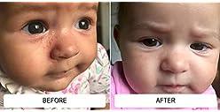 Dr. Eddie's Happy Cappy Medicated Shampoo for Children, Treats Dandruff and Seborrheic Dermatitis, Clinically Tested,...