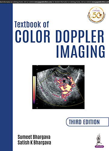 Textbook of Color Doppler Imaging (English Edition)
