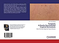 TungiasisA Poorly Documented Tropical Dermatosis: One of the Most Neglected Tropical Diseases