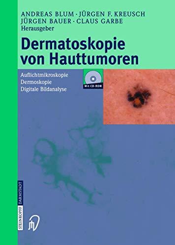 Dermatoskopie von Hauttumoren: Auflichtmikroskopie ― Dermoskopie ― Digitale Bildanalyse