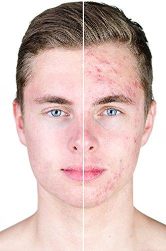 AktivLehm | Anwendung bei Akne, unreiner Haut, Cellulite, Bindegewebsschwäche, Schwangerschaftsstreifen, Neurodermitis, Mundgeruch, Fußgeruch, Hornhaut, Fußpilz, als Deo gegen starkes Schwitzen (Achsel-, Fuß- und Körperschweiß), als natürliche Zahnpflege. - 4