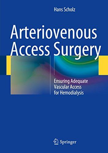Arteriovenous Access Surgery: Ensuring Adequate Vascular Access for Hemodialysis - http://medicalbooks.filipinodoctors.org