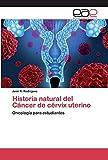 Historia natural del Cáncer de cérvix uterino: Oncología para estudiantes