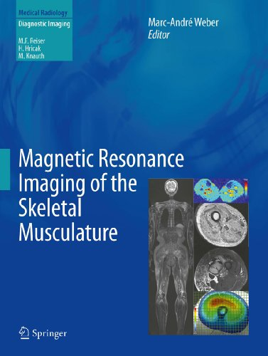 Magnetic Resonance Imaging of the Skeletal Musculature (Medical Radiology) (English Edition)